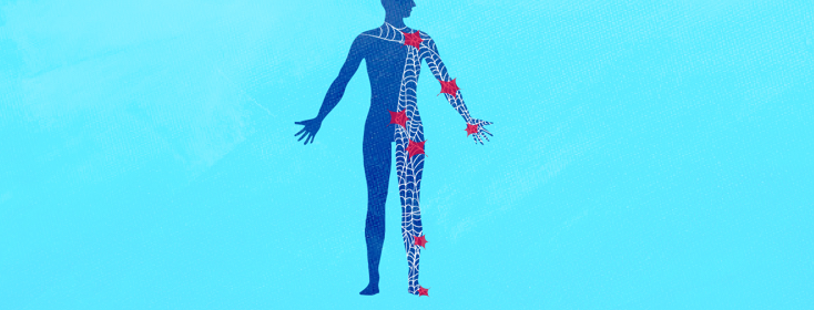 Dealing With Nerve Pain, A Personal Perspective