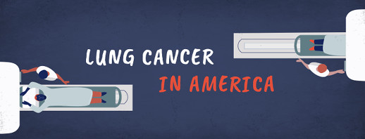 Lung Cancer, Inside & Out image