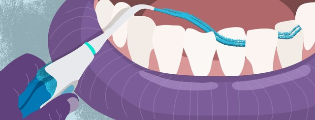Dental Care and the Lung Cancer Patient image