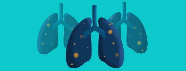 A group of affected lungs stands together