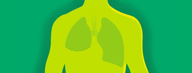 A human silhouette with a pair of lungs that has had a lobectomy