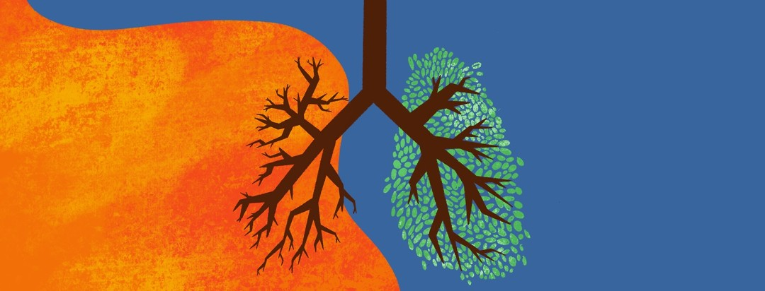 A pair of lungs represented as tree branches - one is lush with leaves and the other is barren being overtaken by an orange color