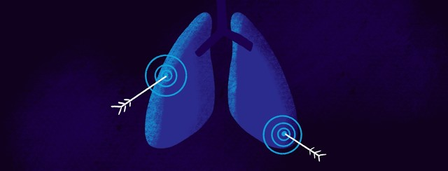 A pair of lungs with two targets, both have an arrow in the bullseye