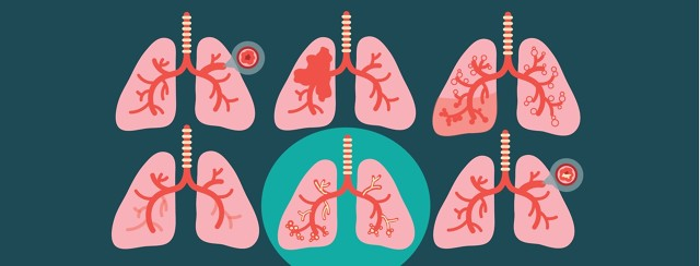 6 pairs of lungs with different conditions