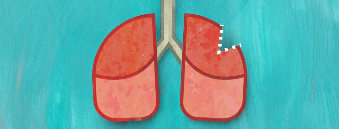 A pair of lungs with a wedge shaped piece missing
